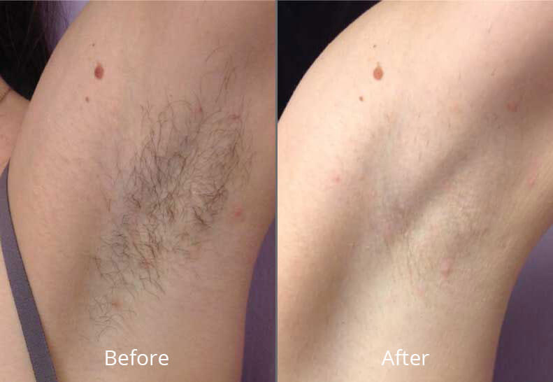 Laser Hair Removal Elegance Medical Aesthetics Botox Cosmetic