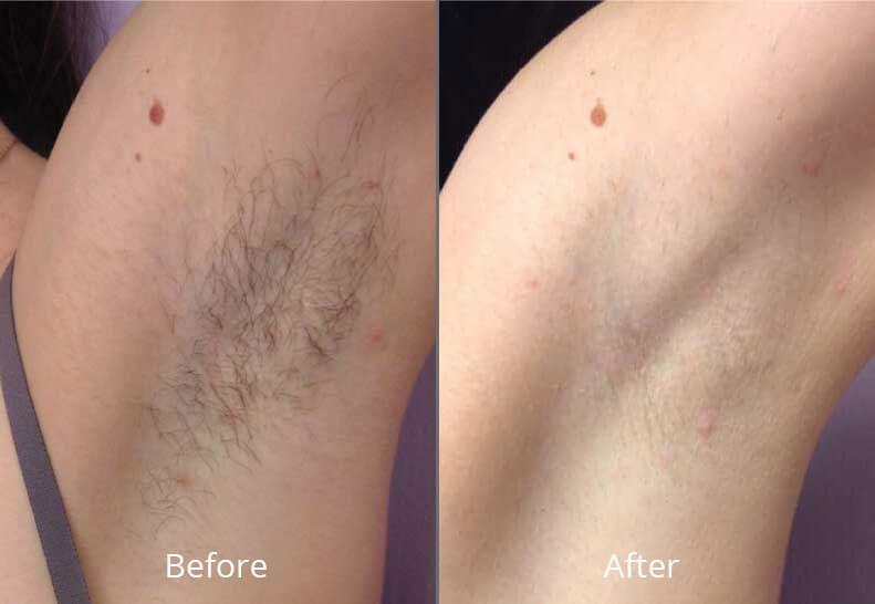 Laser Hair Removal Elegance Medical Aesthetics Botox Cosmetic