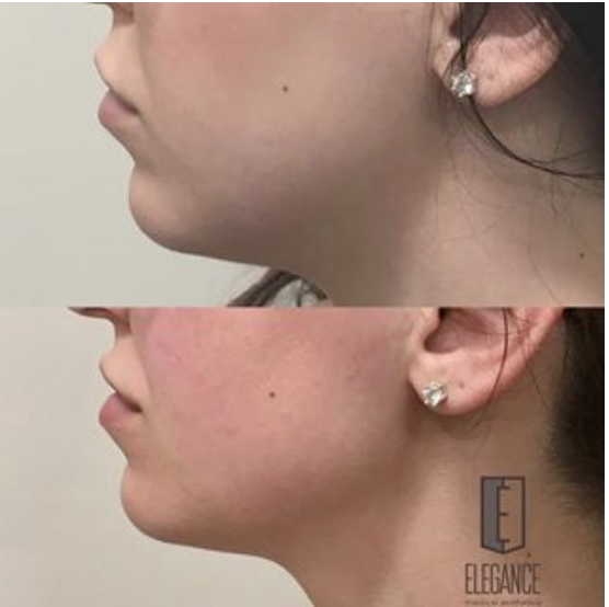 Juvederm | Elegance Medical Aesthetics – Botox, Cosmetic and